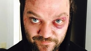 getlinkyoutube.com-The Real Reason We Don't Hear From Bam Margera Anymore
