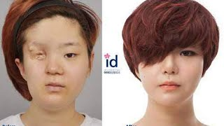 Shy korean girl with facial deformity transforms into a beautiful lady through plastic surgery