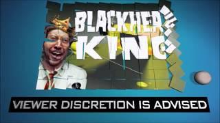 getlinkyoutube.com-Blackhead King's Blackheads and Pimples Under Microscope!