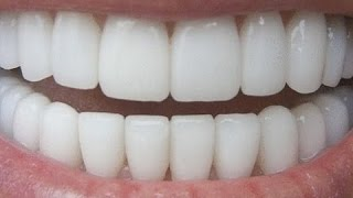 getlinkyoutube.com-How To Have Natural White Teeth in 3 minutes ( Works 100% )
