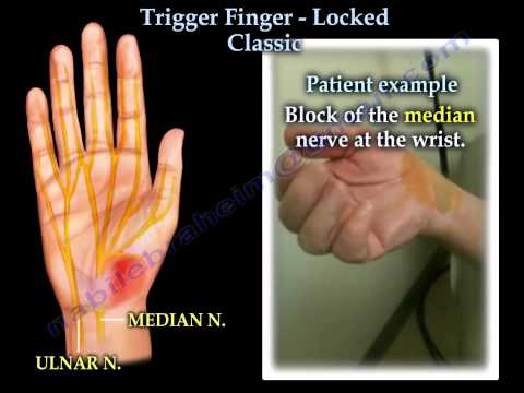 Trigger Finger Locked classic- Everything You Need To Know - Dr. Nabil Ebraheim