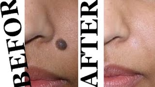 getlinkyoutube.com-चेहरे के मस्से हटाने का सरल उपाय - Home Remedy for Mole Removal  -