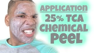 getlinkyoutube.com-Chemical Peel | 25% TCA Peel Application (HD) | Session 4 *Re-upload*