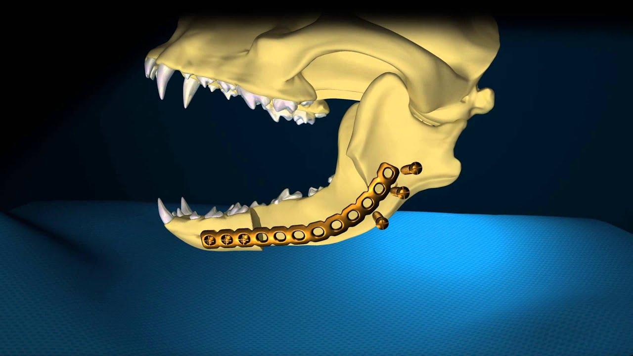 Mandibular Reconstruction