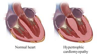 getlinkyoutube.com-Hypertrophy Cardiomyopathy (Idiopathic Hypertrophic Subaortic Stenosis)