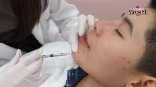 getlinkyoutube.com-Review :: Filler จมูกและคาง เพื่อหน้าเรียวสวยได้รูป by Yasashii Clinic