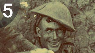 getlinkyoutube.com-5 ภาพถ่ายกับความจริงอันโหดร้ายจากสงครามโลกครั้งที่ 1