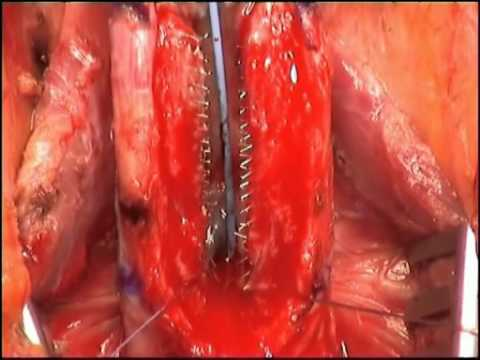 Management Of Urethral Stent Failure For Recurrent Anterior Urethral Strictures