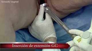 getlinkyoutube.com-Ginecología con laser Fotona