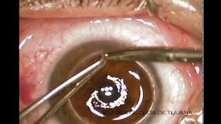 getlinkyoutube.com-Corneal Transplant