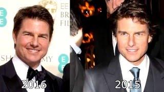 ¿Tom Cruise se operó la cara?