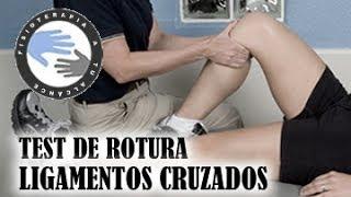 getlinkyoutube.com-Ligamentos cruzados de rodilla pruebas diagnosticas