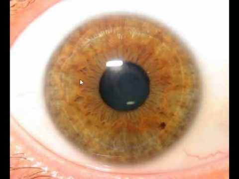 Iridology Lesson #8 - Stomach Rings & Malabsorption
