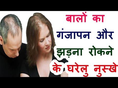 Hair falling treatment in hindi home remedies hair care beauti tips prevent hair fall बालों का झड़ना