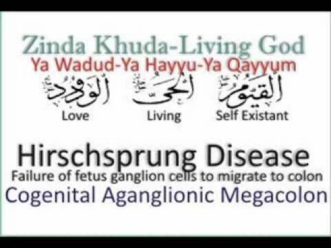 Hirschsprung Disease - Congenital Aganglionic Megacolon.