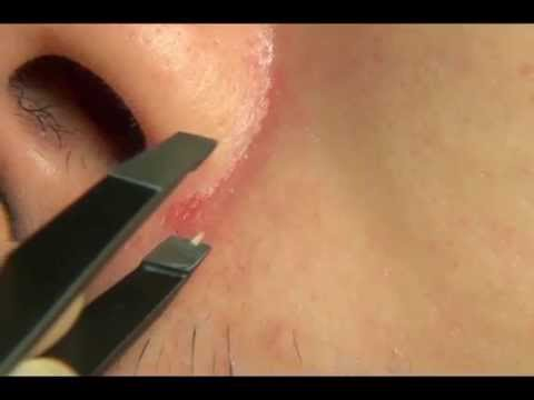HOW TO: Remove Blackhead with a Tweezer