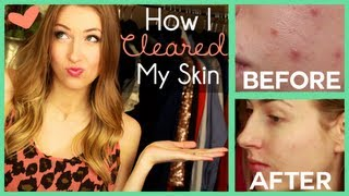 ♥ Clear Skin Tips: How I Got Rid of Acne for GOOD (& What I Did WRONG!)