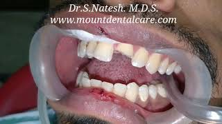 Broken tooth fixed back in half an hour by Dr.Natesh