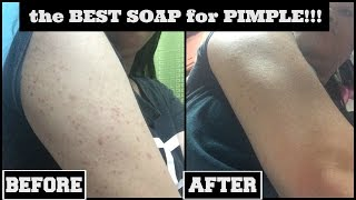 How I Cleared my PIMPLE / ACNE CARE SOAP Review | tagalog