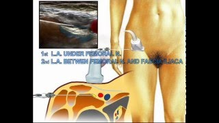 all you need to know about femoral nerve block | download video, Muscles