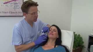 Behandlung der Mundregion mit Hyaluronsäure
