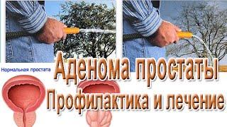 Аденома простаты у мужчины 70 лет