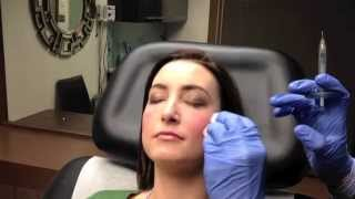 getlinkyoutube.com-Juvederm VOLUMA Instant Cheek Augmentation in Chevy Chase, MD - Dr. Naderi