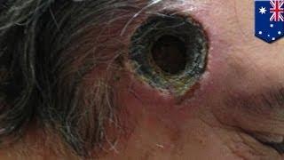 getlinkyoutube.com-Shocking photos: Australiano, nagkaroon ng butas sa ulo dahil sa black salve!