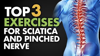 getlinkyoutube.com-Top 3 Exercises for Sciatica and Pinched Nerve