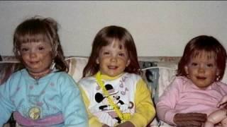 getlinkyoutube.com-Identical Triplets Survive House Fire