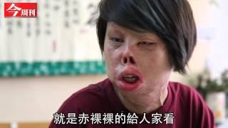 getlinkyoutube.com-《今周刊》火燒截3肢  鋼鐵女孩:我赤裸裸的給人家看
