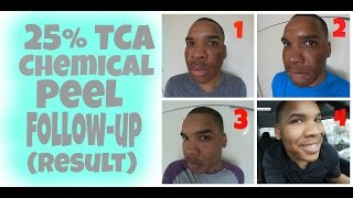 Chemical Peel | 25% TCA Peel Follow-up (Results) HD | Session 4