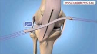 getlinkyoutube.com-Восстановление коленных связок