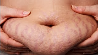 getlinkyoutube.com-How to Get Rid of Stretch Marks Fast
