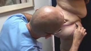 getlinkyoutube.com-Dr. Billy Spence -Cirugia Postbariatrica; lifting de gluteos