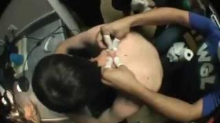 getlinkyoutube.com-Wyciskanie olbrzymiego pryszcza [Najohydniejszy filmik na YouTube]