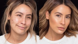 FLAWLESS-SKIN-WITH-ACNE-BREAKOUTS-DESI-PERKINS width=