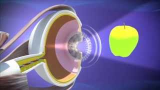 getlinkyoutube.com-Alcon Cataract Surgery Video