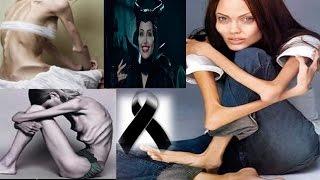 getlinkyoutube.com-10 Famosos que Murieron de Hambre (bulimia y anorexia)
