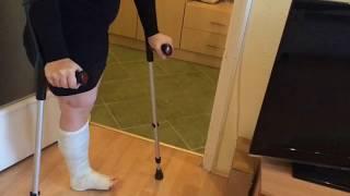 My leg in Plaster