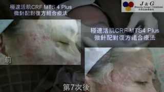getlinkyoutube.com-個案511-治療凹凸洞疤痕暗瘡粉刺(CRF MTS 4 Plus(過程及療程前,4,5,7次後改善情況)-Part 2