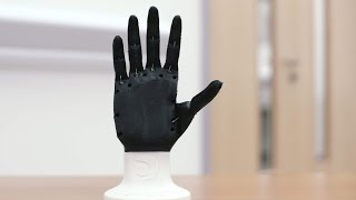 getlinkyoutube.com-Open Bionics: 3D printed prosthetic limbs - Ultimaker: 3D Printing Story