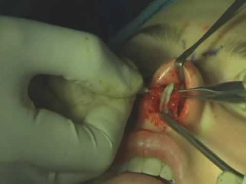 Rhinoplasty lateral Crural Graft By Dr. Levi John Lansanga