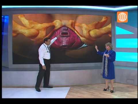 Doctor TV- Todo sobre el prolapso- 15/07/13