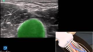 getlinkyoutube.com-3D Lehrvideo: Ultraschallgestützes peripheres Legen von Venen Katheter -  SonoSite Ultraschall