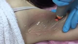 getlinkyoutube.com-กำจัดขนด้วยเลเซอร์ รักแร้  , Laser hair removal
