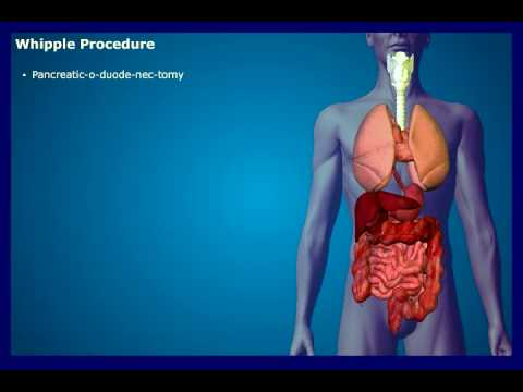 Pancreatic Cancer Diagnosis and Treatment