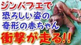 getlinkyoutube.com-【超閲覧注意】恐ろしい奇形の赤ちゃんが生まれる・・【ジンバブエ】