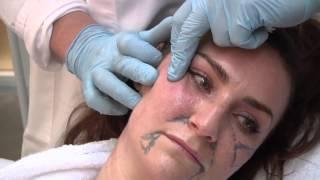 getlinkyoutube.com-Restylane Fullface @ Atelier Restylane by Dr Berne
