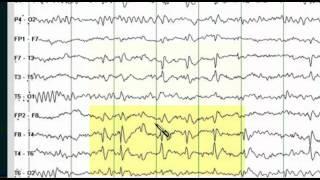 getlinkyoutube.com-Focal EEG Abnormalities 1